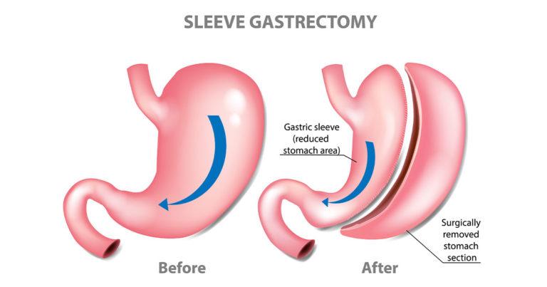 Laparoscopic sleeve gastrectomy procedure
