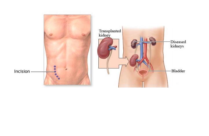 Laparoscopy Nephrectomy for Kidney transplant In India