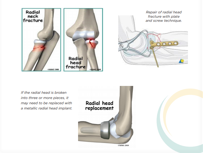 What Happened during Elbow Arthroscopy Surgery In India