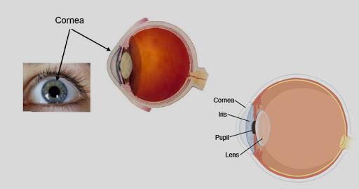 cornea transplant in India