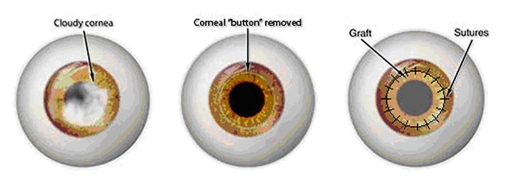 During cornea transplant