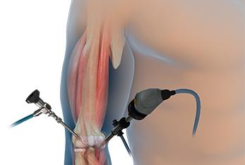 elbow-arthroscopy Surgery In India