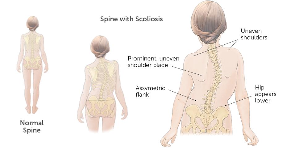 symptoms of scoliosis