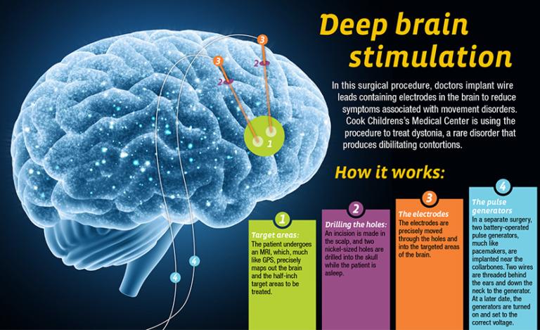 How does Deep Brain Stimulation Surgery work | Medicare Spots