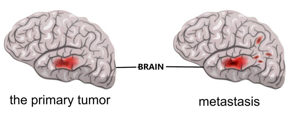 types of Brain tumor